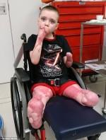 Bé trai bị ăn cụt cả chân lẫn tay sau khi ngủ dậy vì căn bệnh không ai ngờ tới