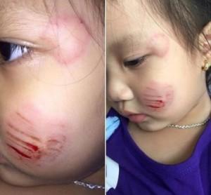 Bé gái mầm non bị bạn cắn nát mặt: Nhà trường trần tình