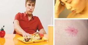 Những dấu hiệu cảnh báo bệnh gan nhiễm mỡ