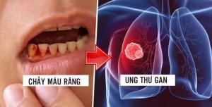 Lơ là dấu hiệu chảy máu chân răng, nhận kết quả khám bệnh hối hận cũng đã muộn