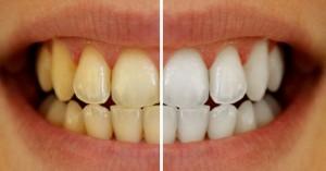Chỉ mất 3 phút với 2 nguyên liệu dễ tìm có ngay hàm răng trắng sáng