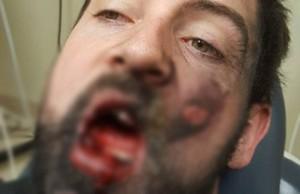 'Bay' 7 chiếc răng vì thuốc lá điện tử phát nổ