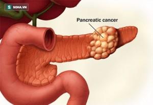 Ung thư có hơn 100 loại nhưng 4 bệnh này gây đau đớn nhất