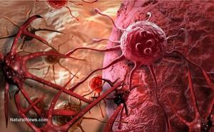 Ai cũng có tế bào ung thư trong cơ thể: 3 nguyên tắc vàng chặn đứng hình thành khối u