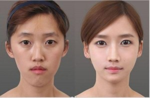 Méo mặt vì phẫu thuật thẩm mỹ không dao kéo