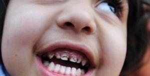Không chỉ trẻ em vùng mỏ mà ở thành phố cũng có thể nhiễm độc chì cao