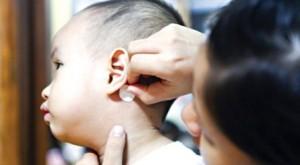 Trẻ có nguy cơ rối loạn hành vi vì miếng dán chống nôn