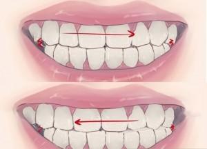Đánh răng mà không biết 10 quy tắc này thì có đánh cũng bằng thừa