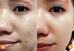 Ham bắn laser trị nám 'giá mềm', cô gái đau khổ khi da mặt rỗ toàn tập