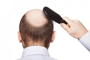 Quá nguy hiểm khi sử dụng thuốc chữa hói đầu
