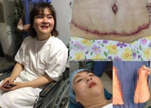 Tiết lộ chi phí Á quân 'Bước nhảy ngàn cân' phẫu thuật cắt bỏ 5kg mỡ bụng
