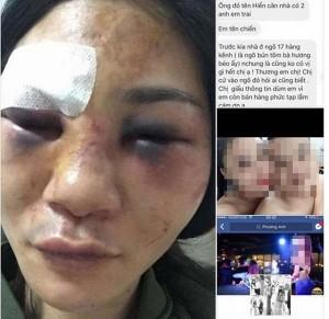 Mẹ đơn thân xinh đẹp bị khách mua hàng online đánh thâm tím mặt mày, nhập viện cấp cứu