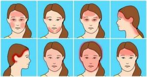 10 kiểu đau đầu phổ biến và nguyên nhân gây ra chúng có thể khiến bạn ngạc nhiên