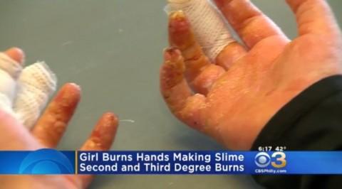 Tiếp xúc hàn the, hai tay của bé gái phồng rộp vì bỏng