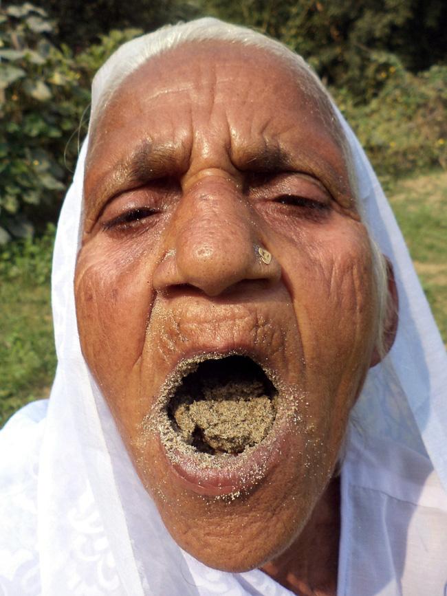 Bà cụ 78 tuổi ăn 2kg cát mỗi ngày suốt 6 thập kỷ qua