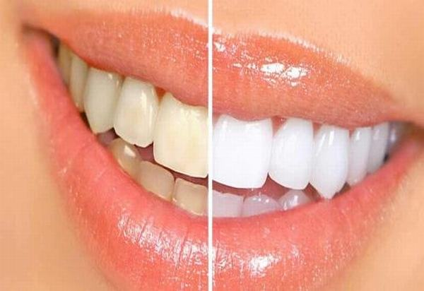 Phương pháp tự nhiên xử lý hàm răng xỉn màu thành trắng sáng trong vài phút