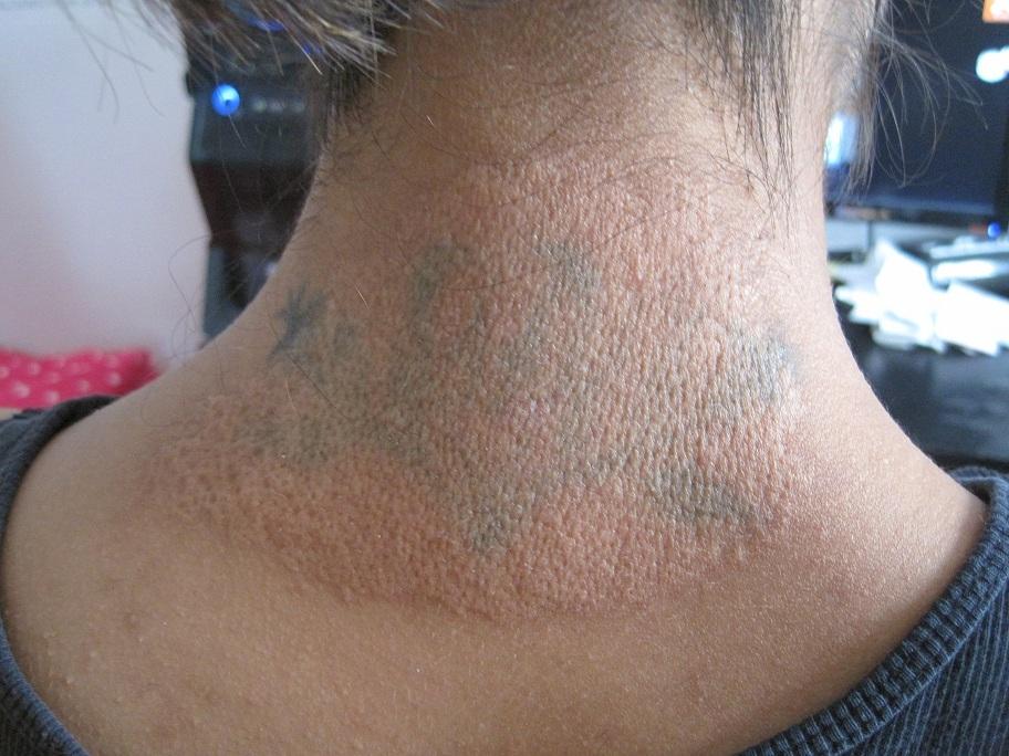 Nguy cơ hoại tử, ung thư da khi xoá hình xăm tại nhà