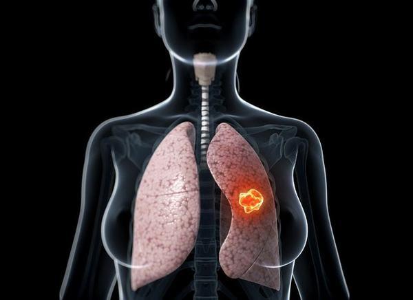 Những dấu hiệu lạ trên cơ thể giúp bạn phát hiện bệnh ung thư trước vài năm