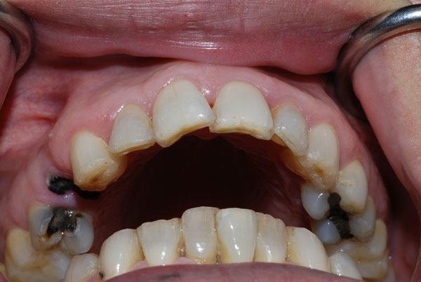 Loại lá đâu cũng có này chữa sâu răng vĩnh viễn hiệu quả hơn dùng thuốc