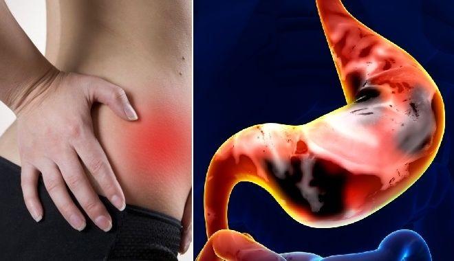 Những dấu hiệu nhận biết ung thư dạ dày sớm nhất